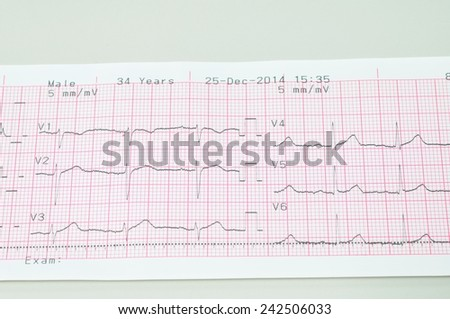 Electrocardiogram  graph report - stock photo