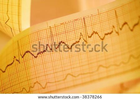 Electrocardiograph-ECG - stock photo
