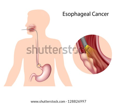 Esophageal cancer - stock photo