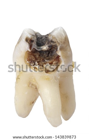 extracted tooth with cavity and caries - stock photo