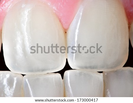 Extreme close up of the front incisor teeth of an adult human female.   - stock photo