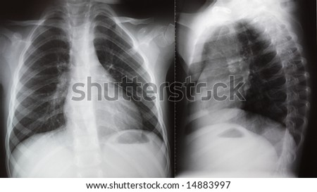 Face and lateral projection of chest X-ray - stock photo