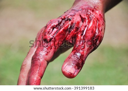 Fake wound on the hands for learning in simulation training for treatment,  Dress the wound, wound makeup special effect, selective focus, abstract blur background, shallow depth of field - stock photo