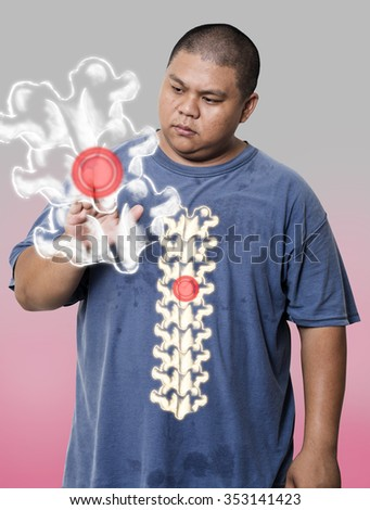 Fat guy Show Xrays of human spine and try to look closer. - stock photo