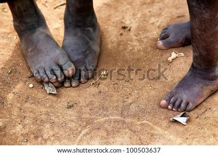 Feet - stock photo