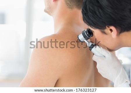 Female doctor examining mole on back of man in clinic - stock photo