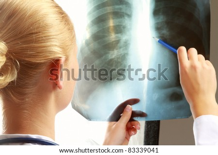Female doctor with an x-ray. - stock photo