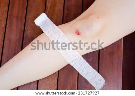 Female knee with bloody scratch and bruise - stock photo