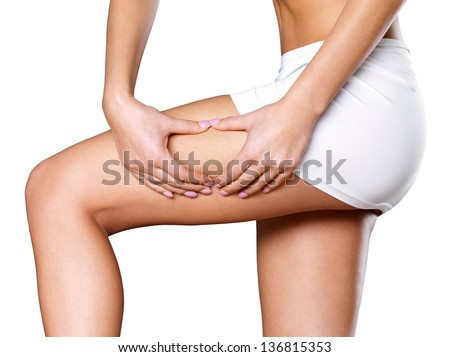 Female squeezes cellulite skin on her legs - close-up shot on white background - stock photo