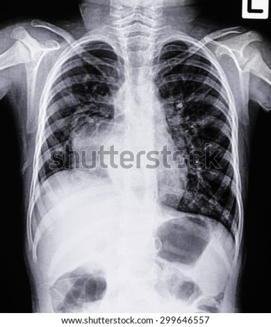 Film chest x-ray PA upright - stock photo