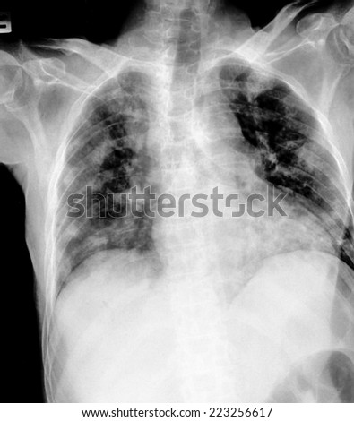 film chest x-ray show alveolar infiltrate and fibrosis at  lungs due to Mycobacterium tuberculosis infection (Pulmonary Tuberculosis) - stock photo