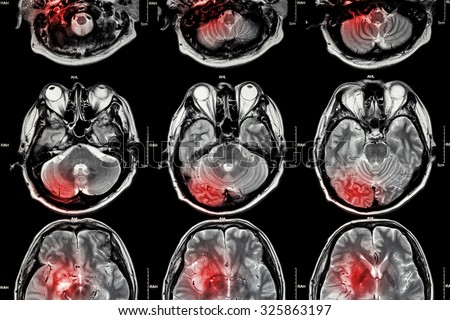 Film MRI ( Magnetic resonance imaging ) of brain ( stroke , brain tumor , cerebral infarction , intracerebral hemorrhage )  ( Medical , Health care , Science Background ) ( Cross section of brain ) - stock photo