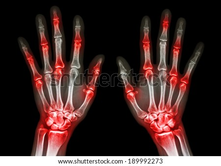 film x-ray both human's hands and arthritis at multiple joint (Gout,Rheumatoid) - stock photo
