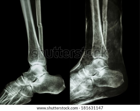 film x-ray fracture shaft of fibular(leg's bone) with cast(right image) - stock photo