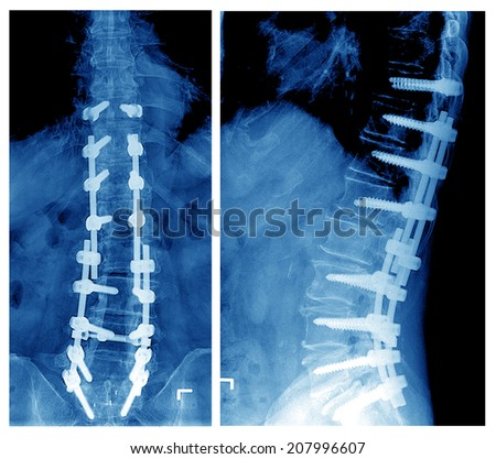 film x-ray of T-L spine  - stock photo