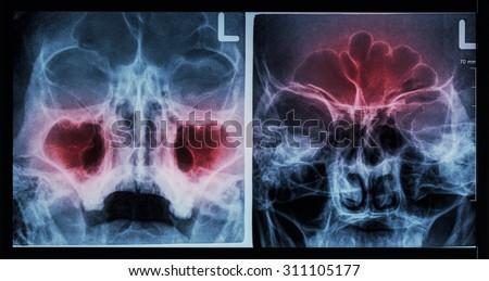 Film X-ray paranasal sinus : show sinusitis at maxillary sinus ( left image ) , frontal sinus ( right image ) - stock photo