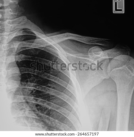 Film X-ray show fracture clavicle - stock photo