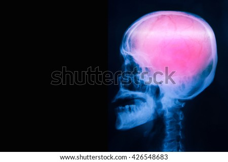 Film x-ray skull lateral with stroke - stock photo