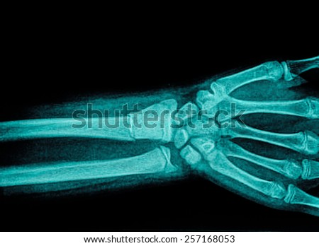 film x-ray wrist show fracture distal radius - stock photo