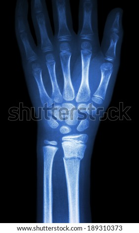 film x-ray wrist show fracture distal radius (forearm's bone) - stock photo