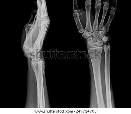 film x-ray wrist show fracture distal radius (forearm's bone) - stock photo