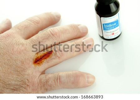 Finger with cut and iodine treatment on it with a bottle - stock photo