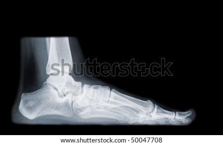 flatfoot isolated on black background - stock photo