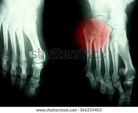 Foot Xray (X-ray) photo - stock photo
