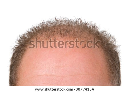 Forehead with balding isolated on white background - stock photo