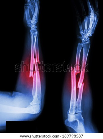 fracture shaft of radius & ulnar bone - stock photo