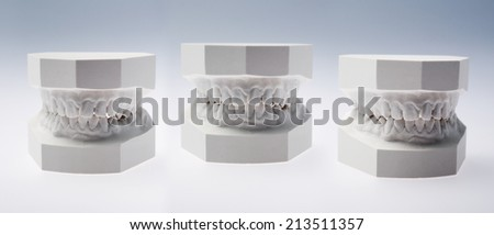 Front view of a plaster study models on white background - stock photo