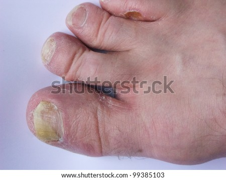 Fungal infection of the foot - stock photo