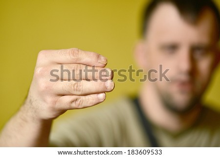 Fungus Infection on Nails Hand  - stock photo