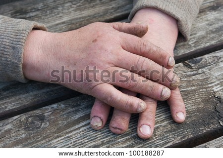 Fungus Infection on Nails Hand elderly man - stock photo