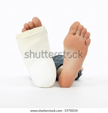 girl with a broken leg (close-up of feet, one with a plaster bandage) - stock photo