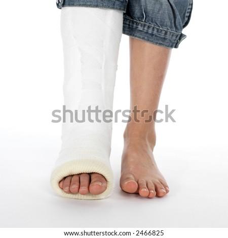 girl with a broken leg (white background)) - stock photo