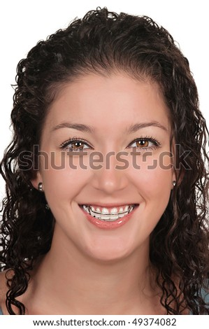 Girl with dental braces ( retainer) - stock photo