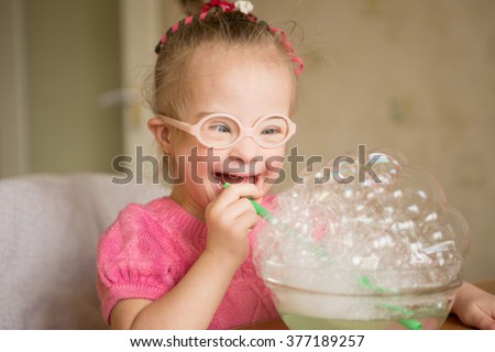 Girl with Down syndrome makes breathing speech therapy exercise - stock photo