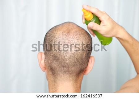 hair growth, - stock photo
