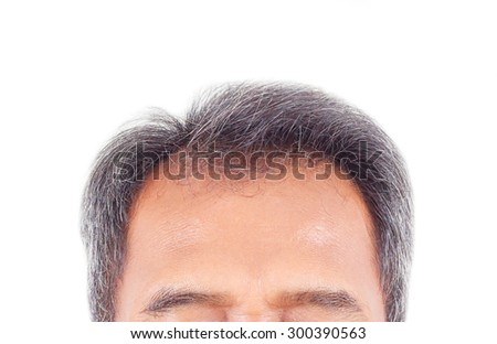 hair loss and grey hair, Male head with hair loss symptoms front side. - stock photo