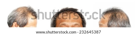 Hair loss , Male head with hair loss symptoms, set 3, front, left side, right side - stock photo