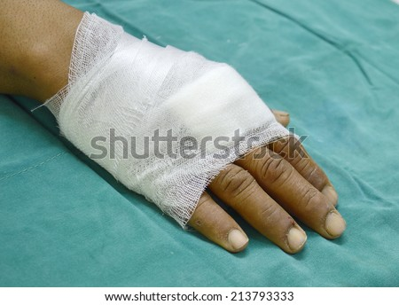 hand covered with a simple gauze dressing. - stock photo