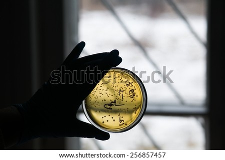 Hand in glove holding Petri dish with bacteria growing in it. Medical tests and research. Bacterial cultures in laboratory glassware. - stock photo