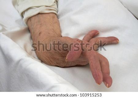 Hand of an elderly woman by arthritis, rheumatism, osteoarthritis - stock photo