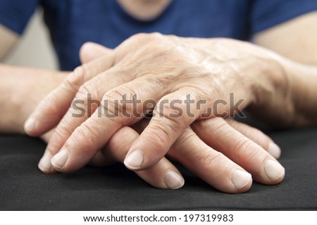 Hand Of Woman Deformed From Rheumatoid Arthritis - stock photo
