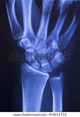 Hand, thumb, wrist and fingers xray traumatology and orthopedics test medical scan used to diagnose sports injuries. - stock photo