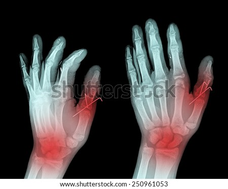 Hand x-ray image medical background,thumb painful - stock photo