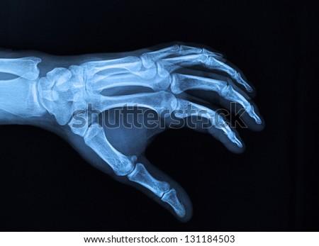 Hand xray image medical background - stock photoXray Hand Holding
