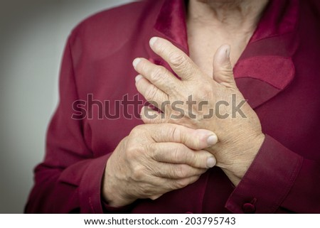 Hands Of Woman Deformed From Rheumatoid Arthritis. Pain - stock photo