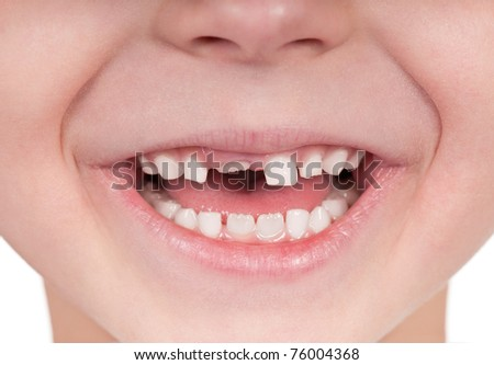 Happy little girl or boy toothless smile close-up - stock photo
